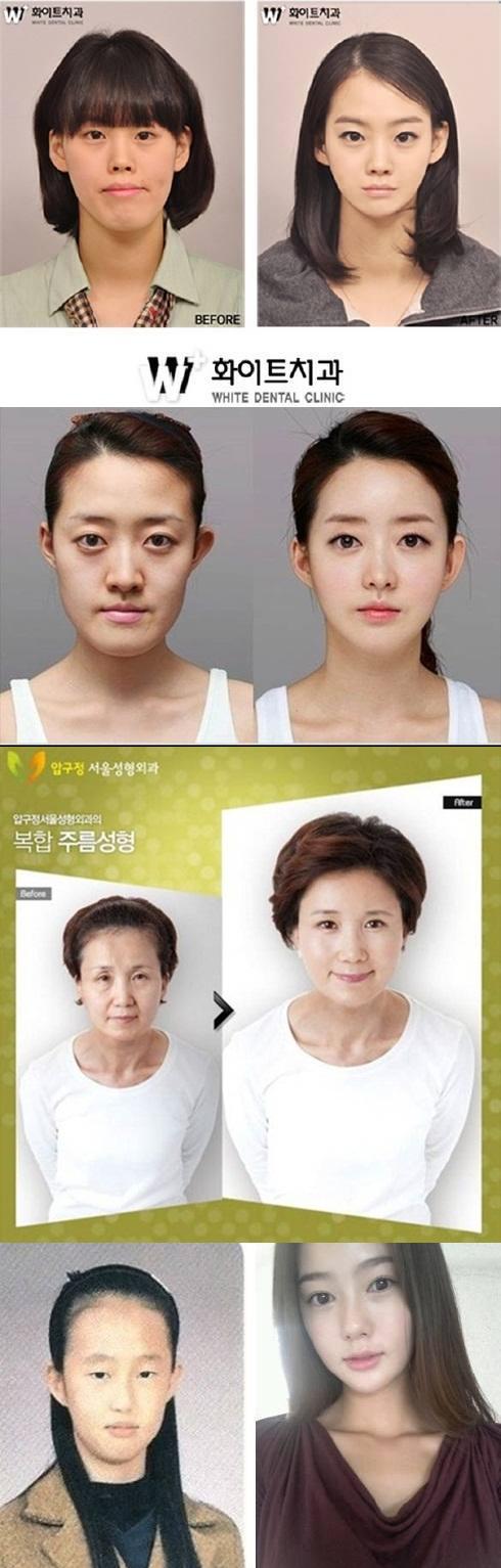 Pembedahan-plastik-di-korea 1