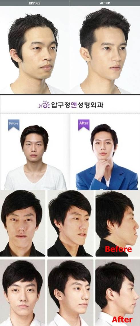 Pembedahan-plastik-di-korea-lelaki