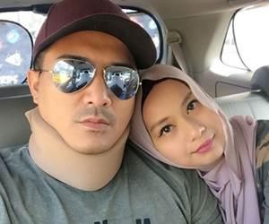 Aaron Aziz Alami Sakit Saraf Cervical Facet Arthritis
