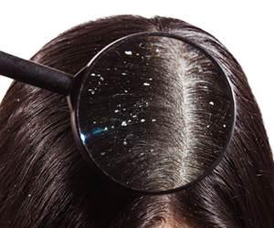 Solusi Tiga Masalah Utama Rambut Yang Tidak Ramai Tahu